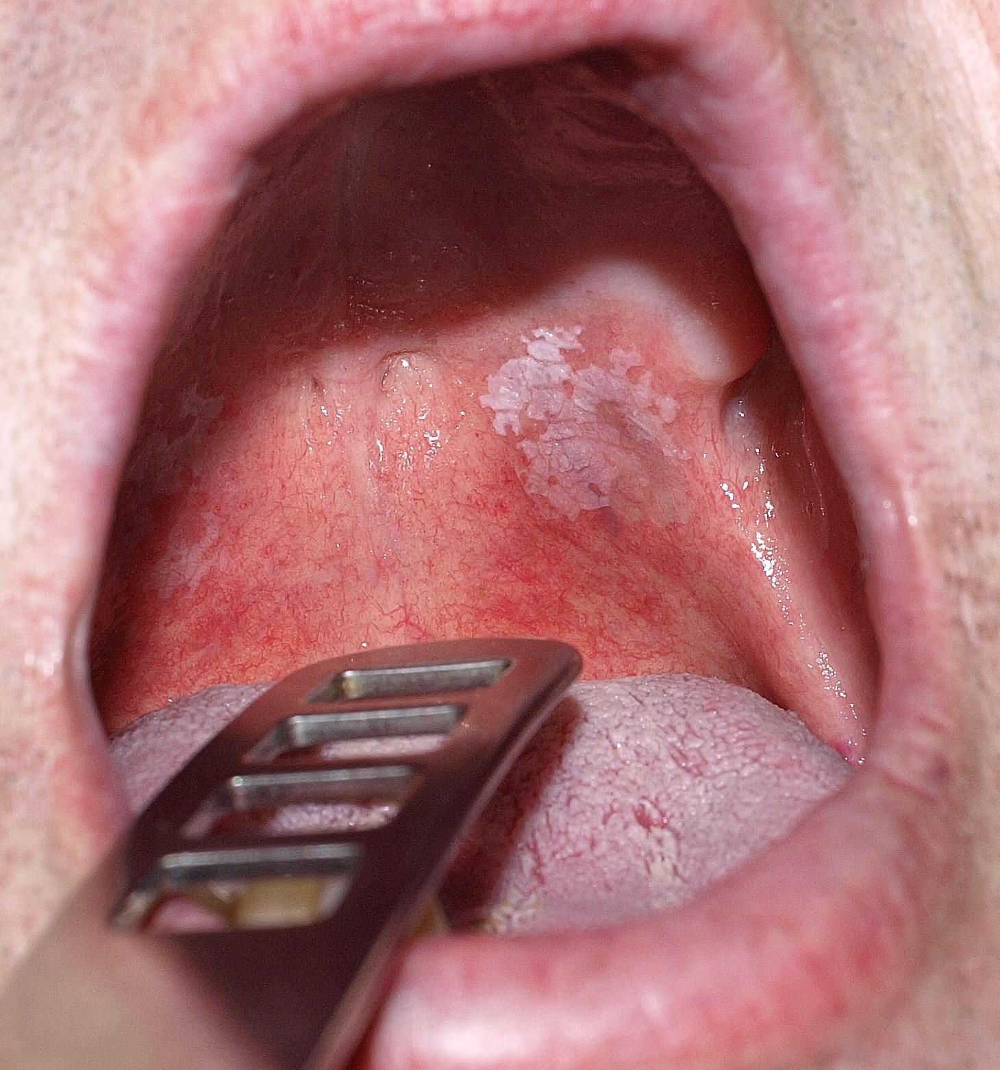 rák a nyelv hegyén