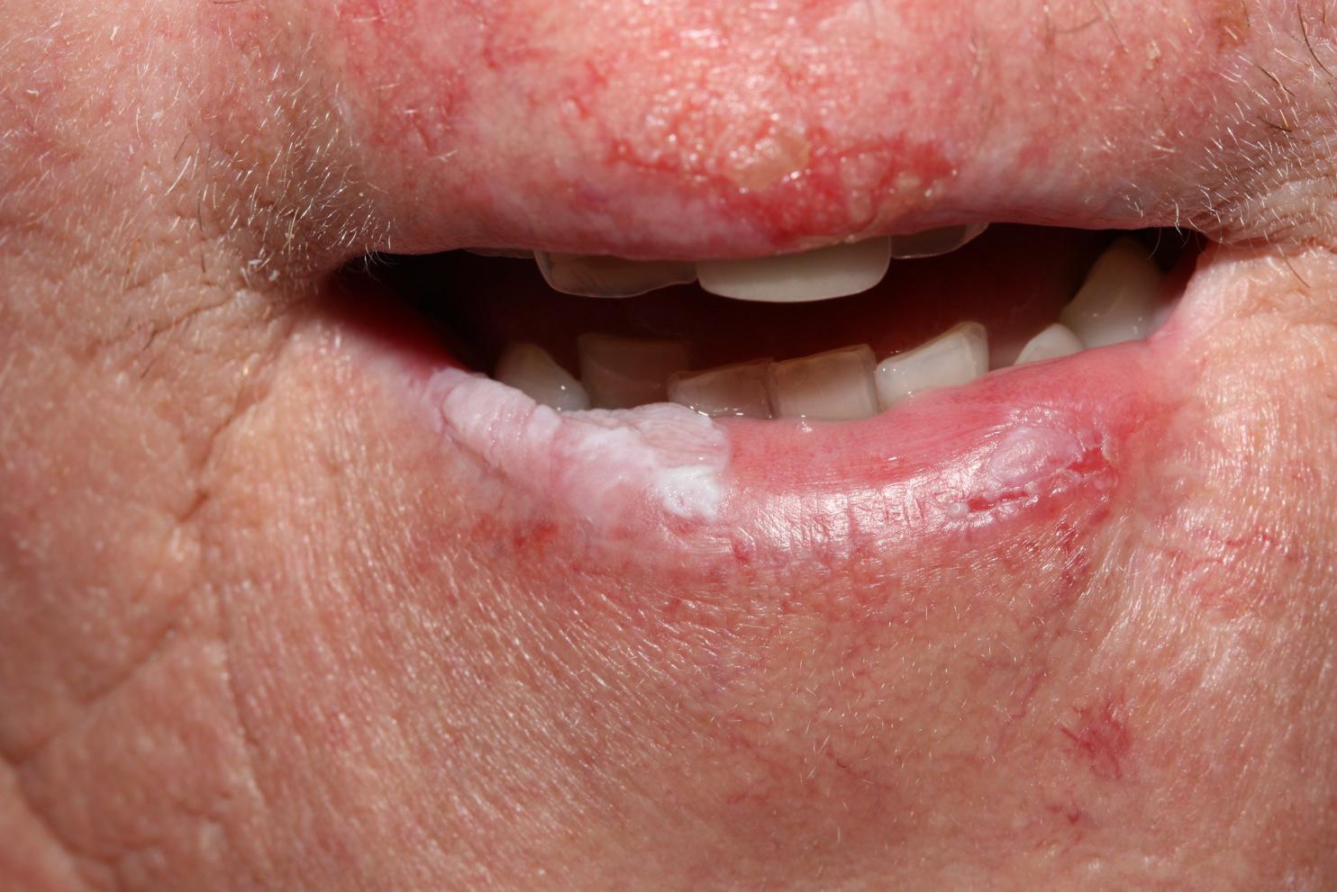 Condylomata száj kép okoz eltávolítását, bőrbetegségek