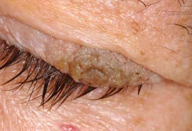 pikkelyes papilloma hólyag patológiája