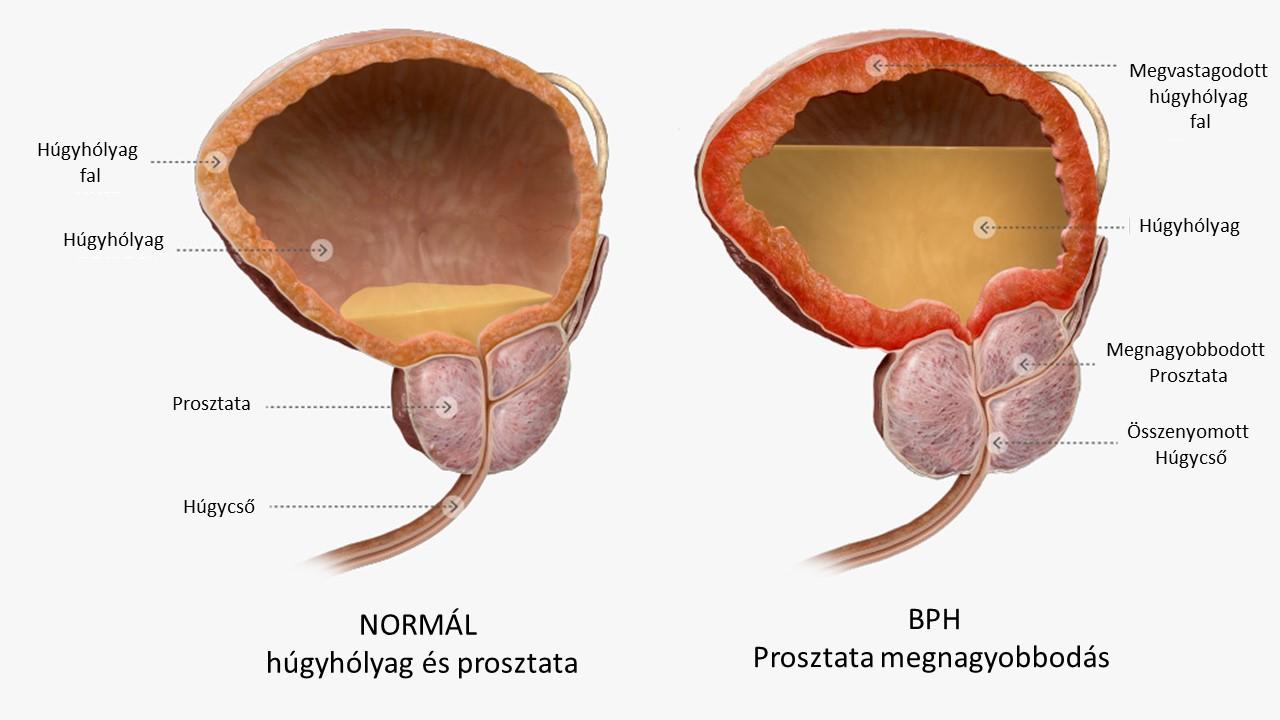 enterobius uptodate ember alatti paraziták