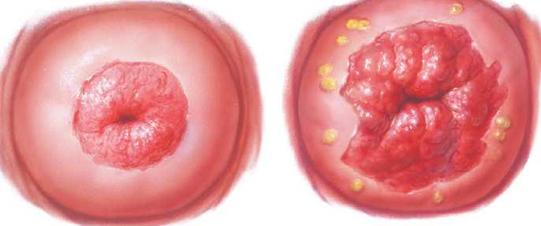 milyen tabletták a férgek kiküszöbölésére készítmények szubkután parazitákhoz