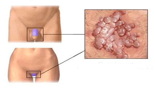 condyloma kezelése az ajkakon méregtelenítés zeolittal