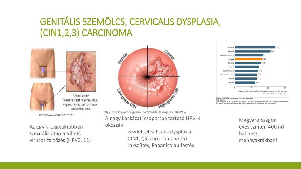 Nyaki dysplasia és condyloma