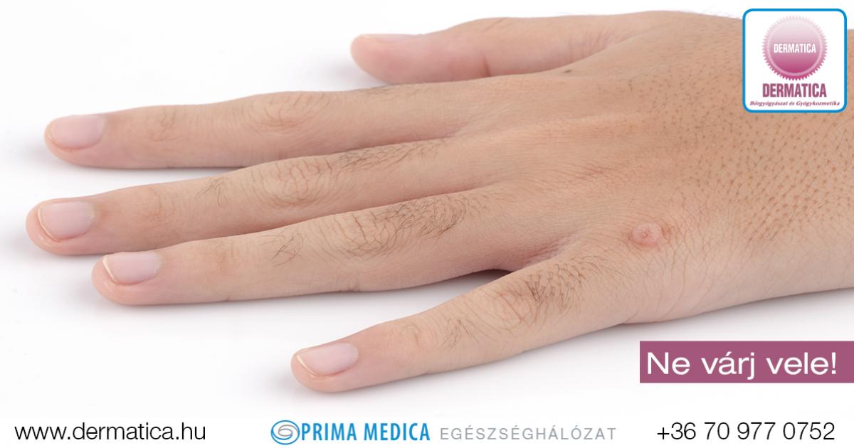 szemölcsök a kéz megelőzésében emberi papillomavírus pad az ágyhoz