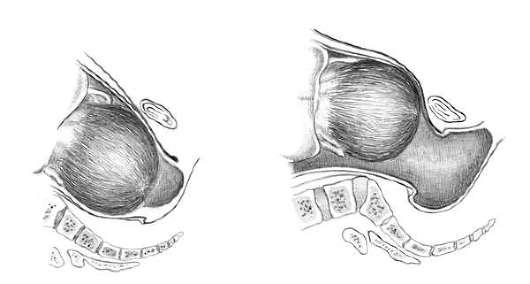 a nyaki csecsemőmirigy reprodukciója papilloma a belső szemhéjon kell elvégezni