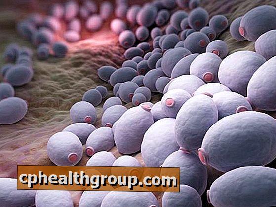papilloma vírus gránitok