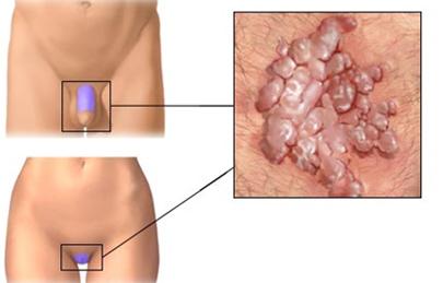 papillómák a nemi szervek kezelésében részesülő nőknél