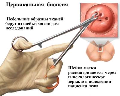 Lézersebészet | Aniron Egészségközpont