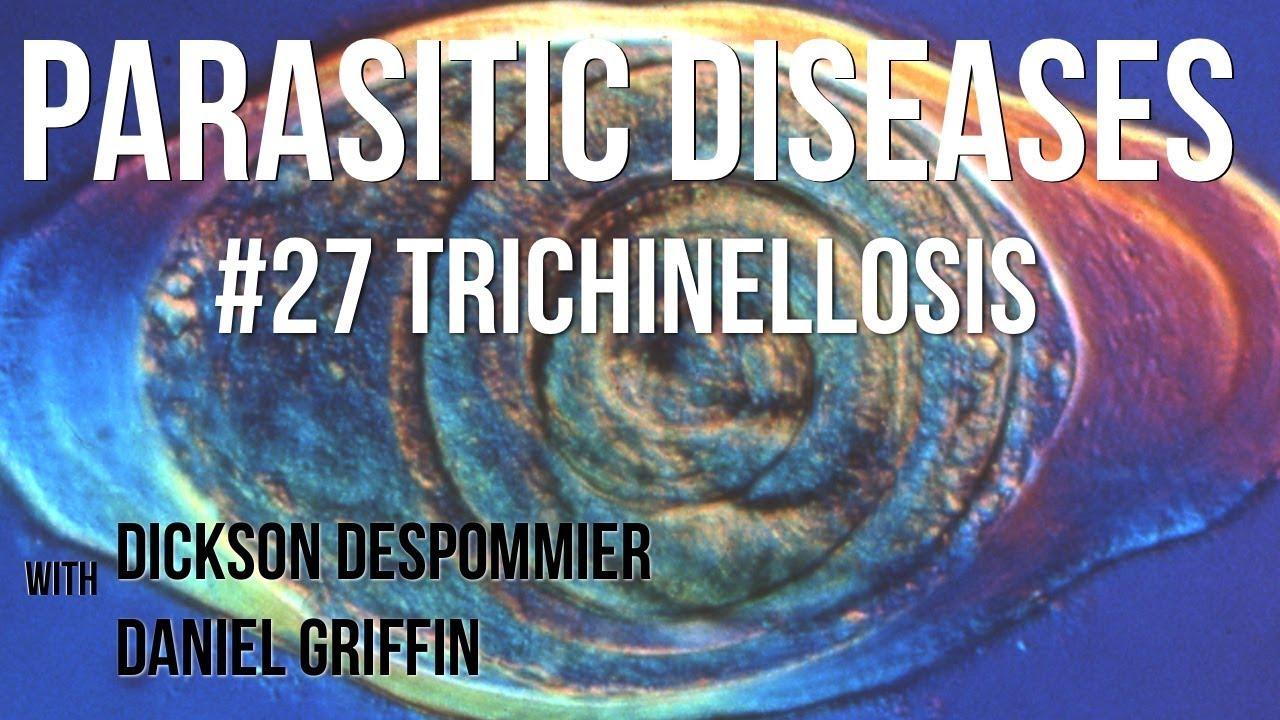 Trichinella izzó, csalánkiütés | Kínai-medicina