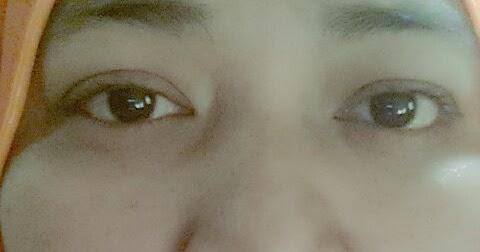 Ha a szemölcsök kifehéredtek, Szemölcs kezelés ezüst-nitrát