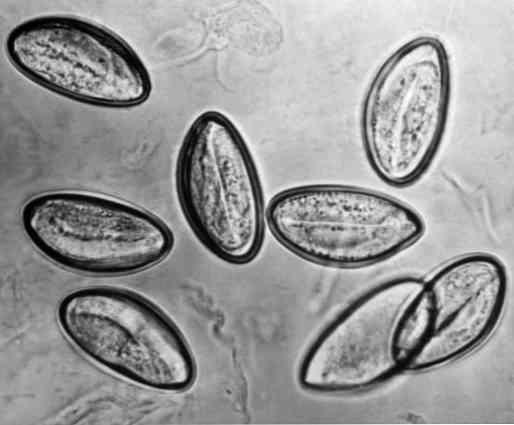 vastagbélrák legjobb kórházak schistosomiasis csigafajok