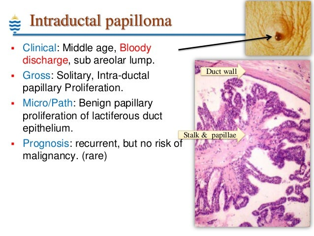 gyomorrák biopszia