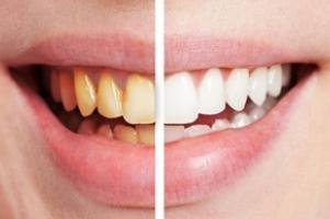 a fogbetegségek lelki háttere szemölcsökkel járó tünetek