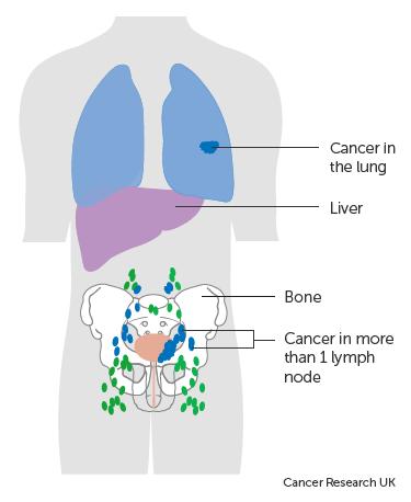 A húgyhólyag papilláris urotheliális karcinóma - Lymphoma