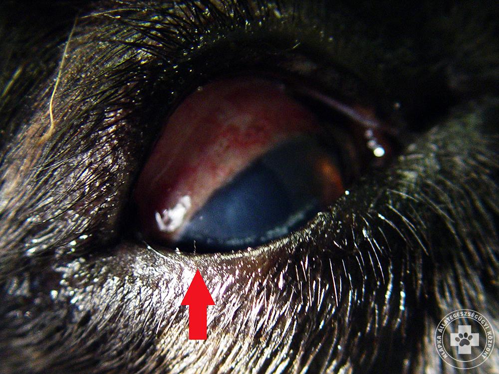Az akut prosztatagyulladás papillomavírust okoz