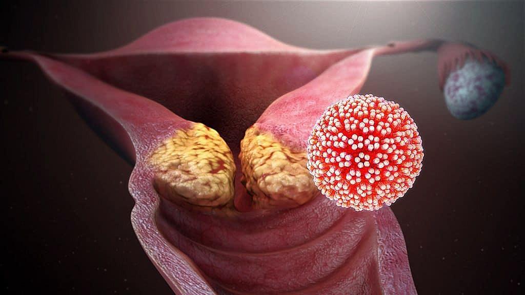 hpv vírus donne rák nőknél le