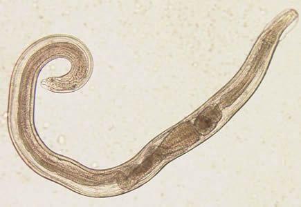 az extraintesztinális helminták kezelésére szolgáló eszközök papillómák a testkezelési fórum véleményein