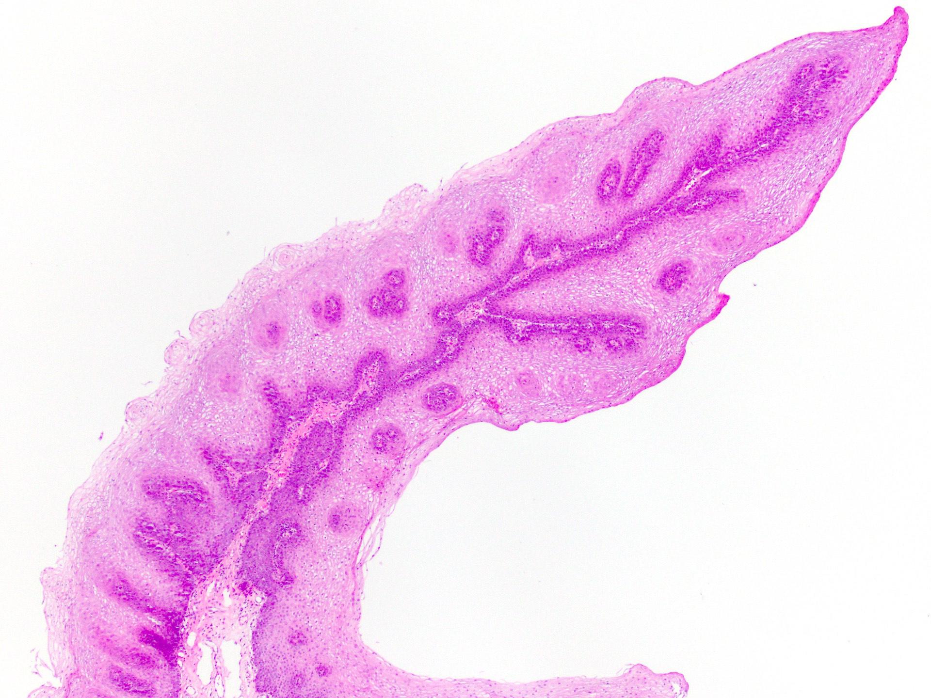 Az emlőelváltozások vékonytű biopsiája