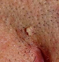 penyakit hpv kelamin condyloma nőknél a testen
