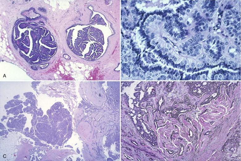 sclerosisos papilloma atypia-val