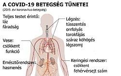 paraziták a hörgők tüneteiben és kezelésében