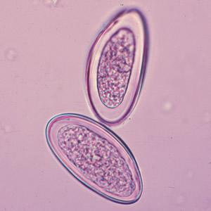 endoparazita helminták
