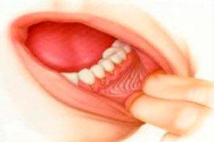 verme giardia házi gyógymód torokrák papilloma vírus
