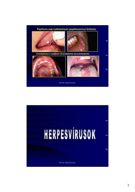 A humán papillomavírus és a szájüregi daganatok | securatik.hu