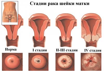 hpv vírus nyaki rák)