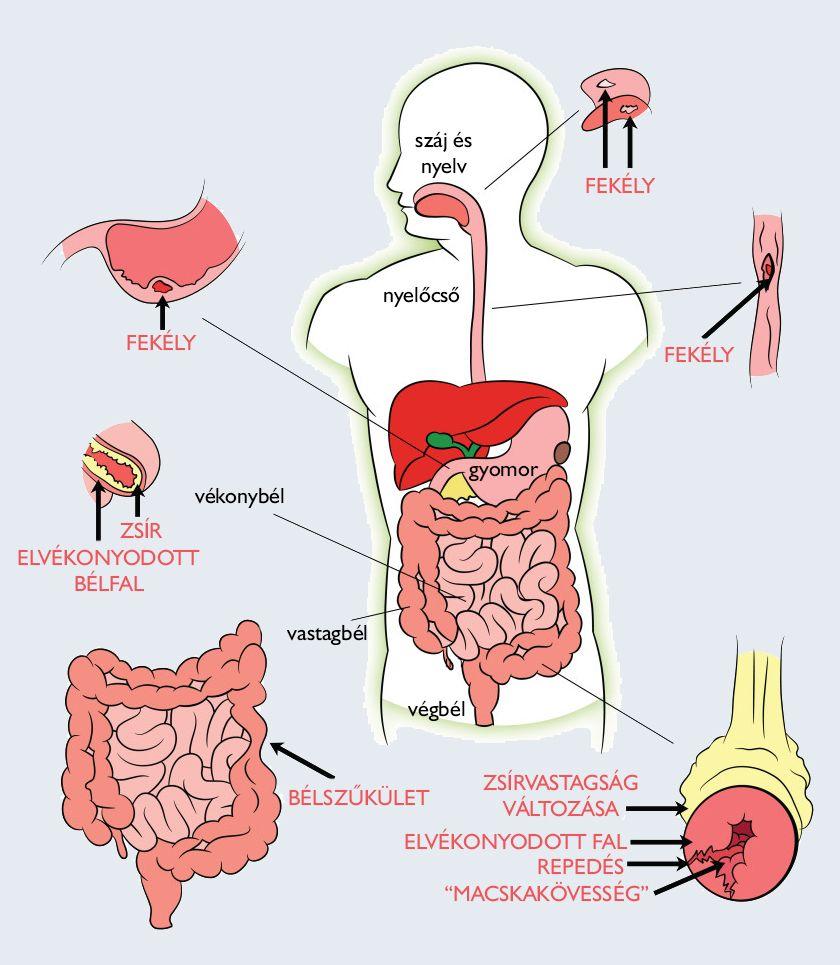 paraziták gyógyszeres kezelése az emberi testben