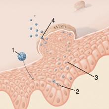 a papilloma és a condyloma egy és ugyanaz
