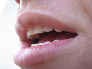 Nyelvgyökrák tünetei és kezelése - HáziPatika