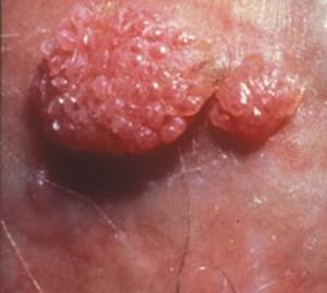 hpv tedavisi sonras cinsellik
