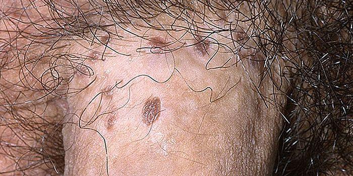 nekrózis tünetei hpv sérülés és terhesség