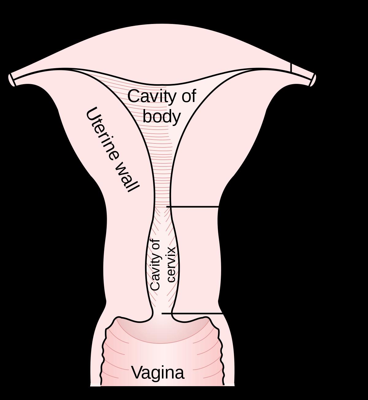 phylum aschelminthes kép giardia metronidazol hond