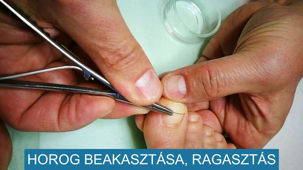 Féreg kezelese hazilag, Az orsóférgesség kezelése, Mi a körömféreg-kezelés