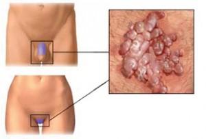 Két hatékony, noninvazív módszer a basalioma kezelésére - Condyloma immunmodulátor