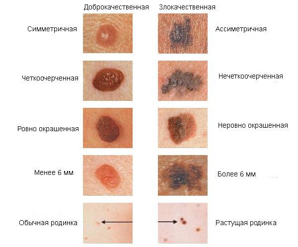 jóindulatú rák vakond vastagbél tisztító tabletták méregtelenítő