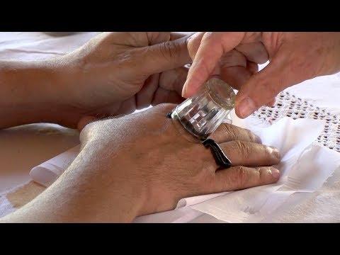 féreg laktációs kezelés nyelv papillae gyulladás kezelése