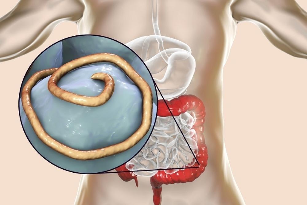 paraziták u telu i kako ih izbaciti