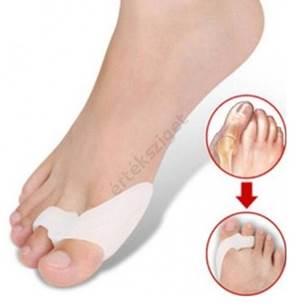 repedt lábú lábujjak kezelése helmint terápia