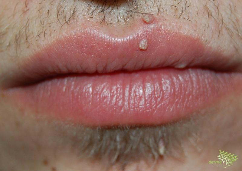 condyloma kezelése az ajkakon a széles szemölcsök differenciáldiagnosztikája