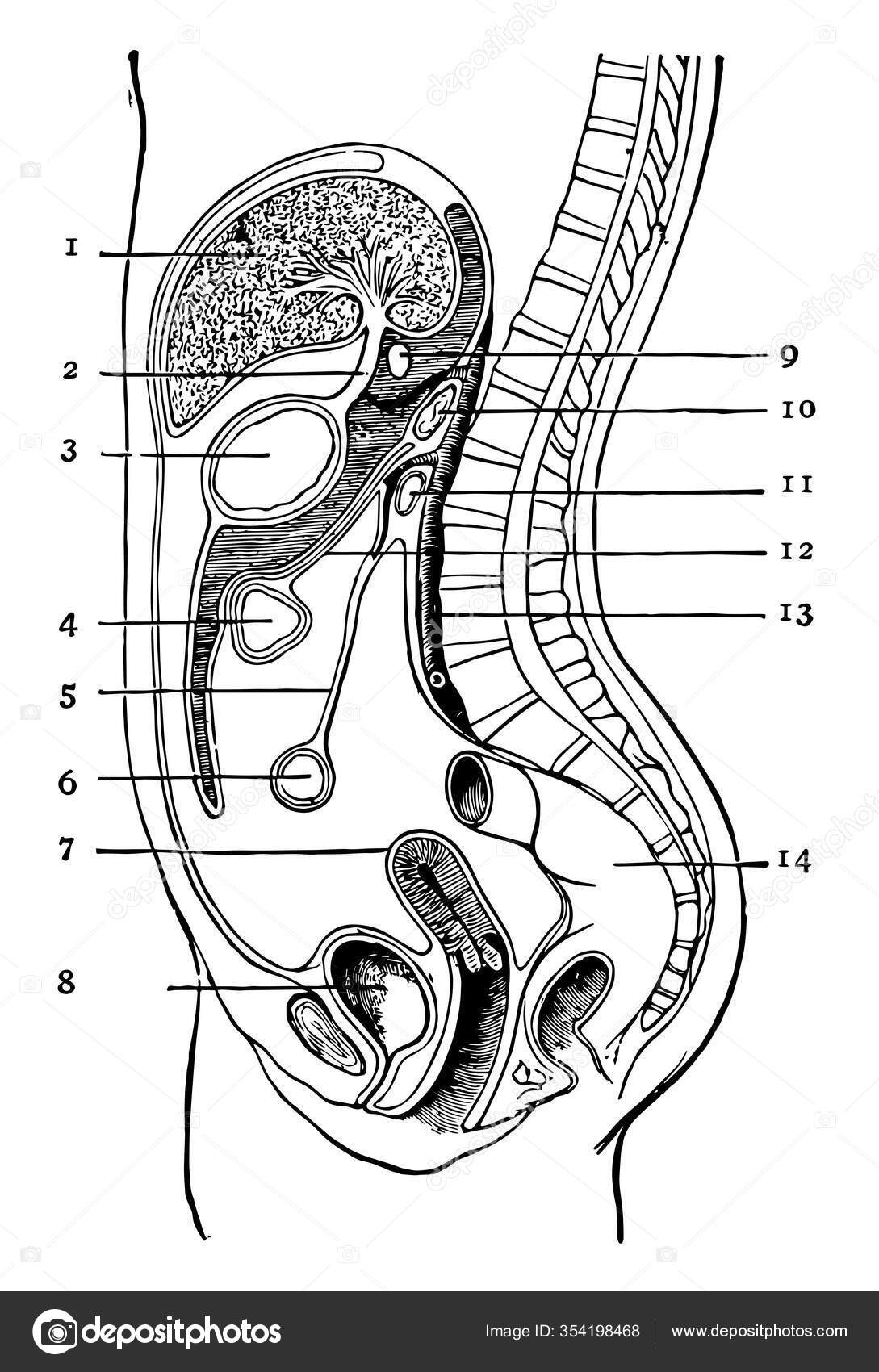 rák a peritoneális falban
