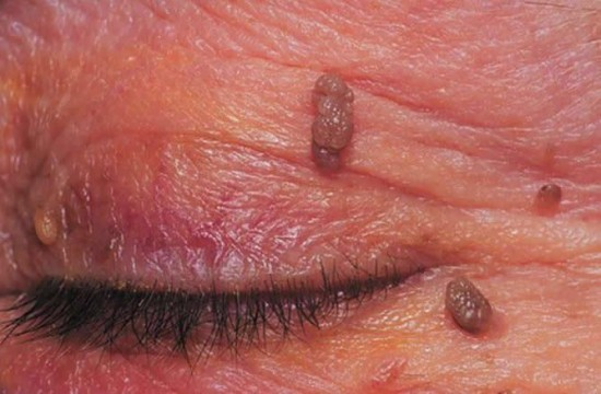Milyen betegségeket okoznak a humán papillóma vírusok?
