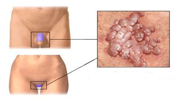 condyloma kenőcs férfiak számára fáj a hóna alatti papilloma