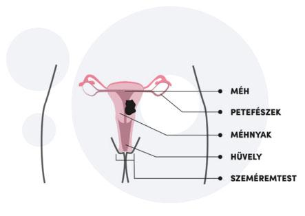 rák HPV-től hímekben