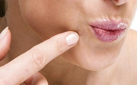 a genitális szemölcsök megjelenése az ajkakon humán papilloma vírus nők kezelésében