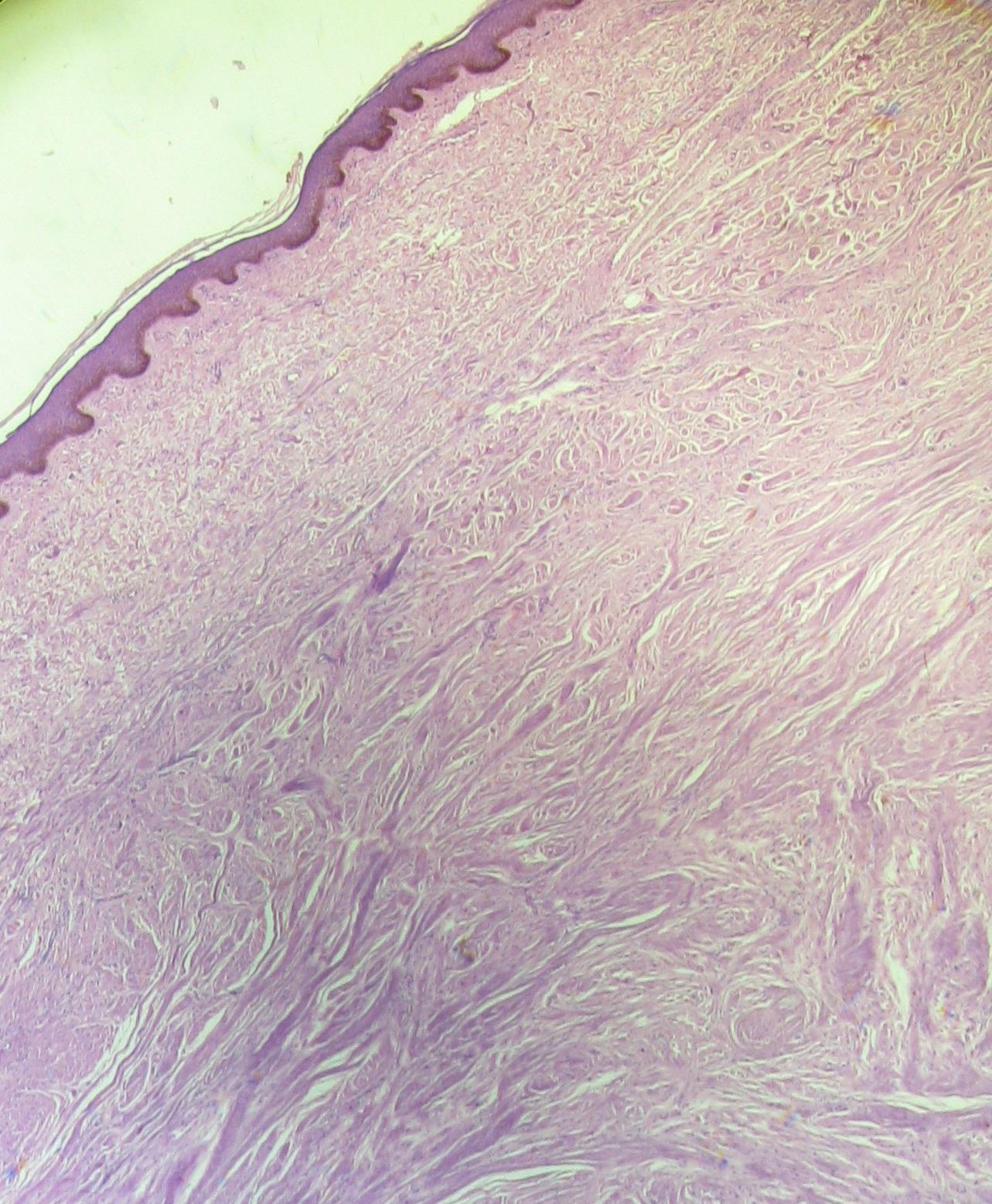 Papilloma az orrban: tünetek, kezelési módszerek - Allergia October