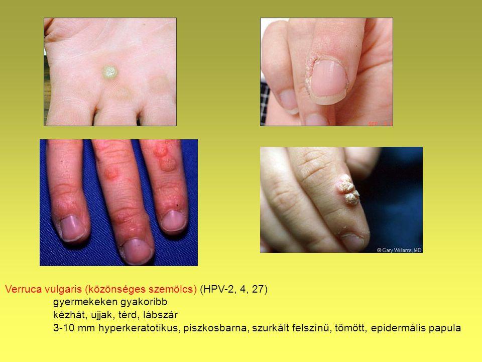 gégepapillómát okozó hpv gyomorrák első tünetei