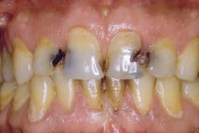 Lelki eredetű betegségek: fogfájás